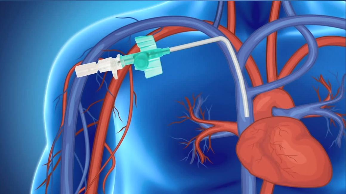 Material multimedia para el cuidado del catéter venoso central con reservorio subcutáneo (porth a cath)