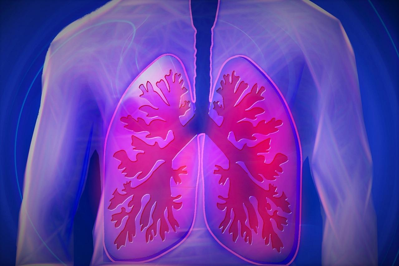 Aprender a vivir con enfermedad pulmonar obstructiva crónica (EPOC)