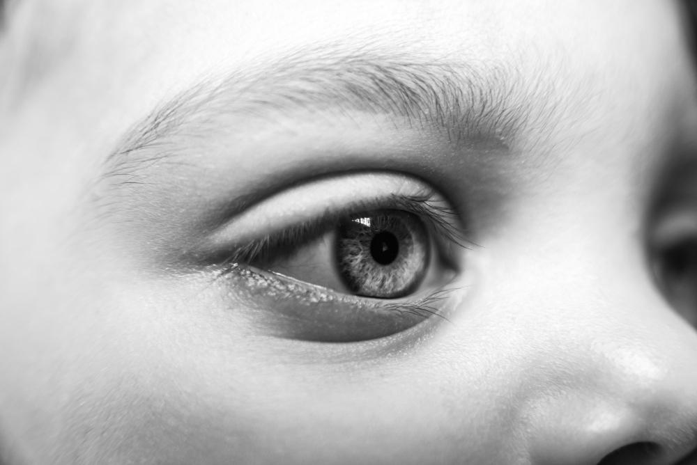 Tu hijo tiene el ojo rojo, ¿qué hacer?
