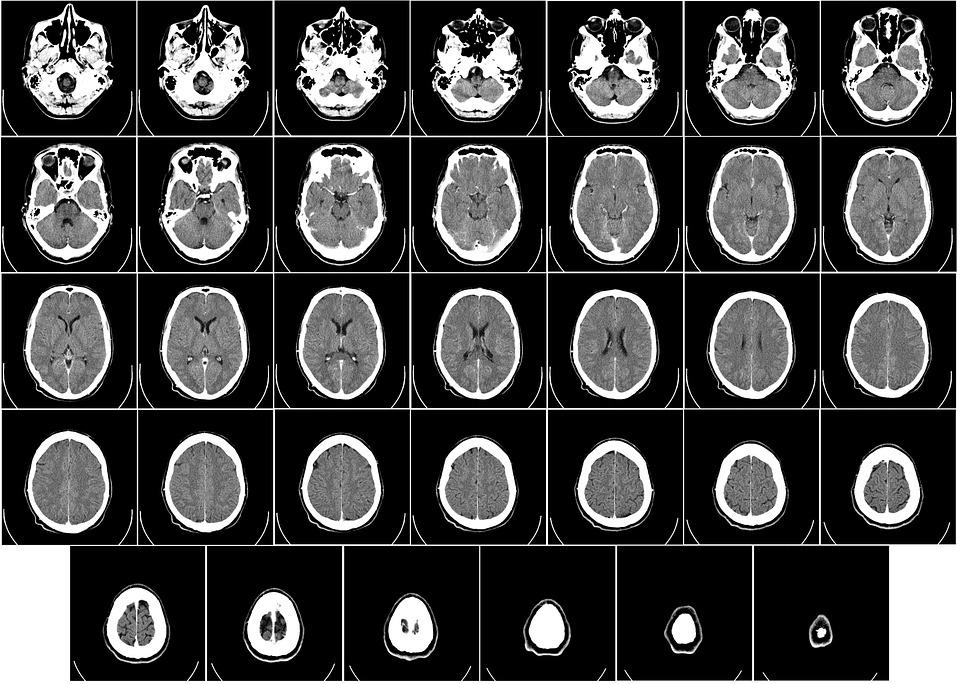 La TAC (tomografía axial computerizada). ¿En qué consiste?