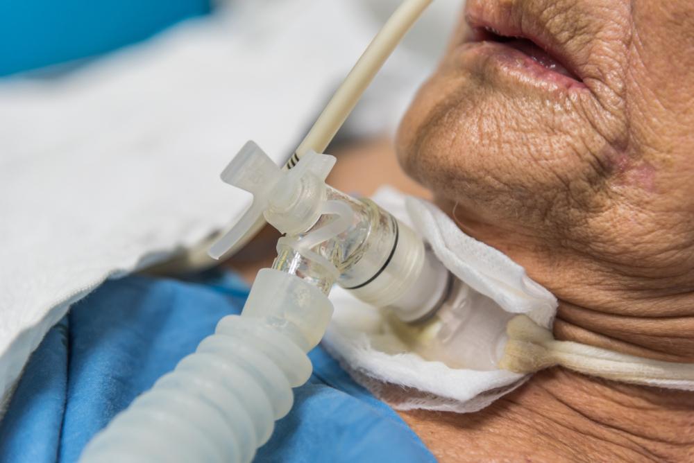 Una traqueotomía en la UCI… ¿qué implica?